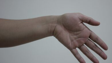 Photo of Ulnar deviation what it is and how to treat it