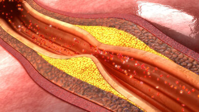 Photo of Atherosclerosis – Scans detect inflammation in arteries before they harden