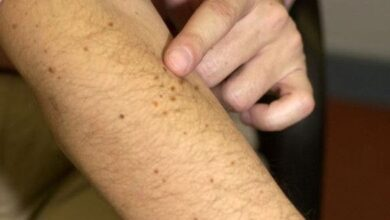 Photo of Herpes Zoster Awakened by Covid Vaccine